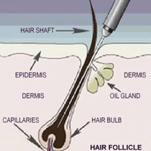Electrolysis Permanent Hair Removal at Beauty Works Spa Belleville