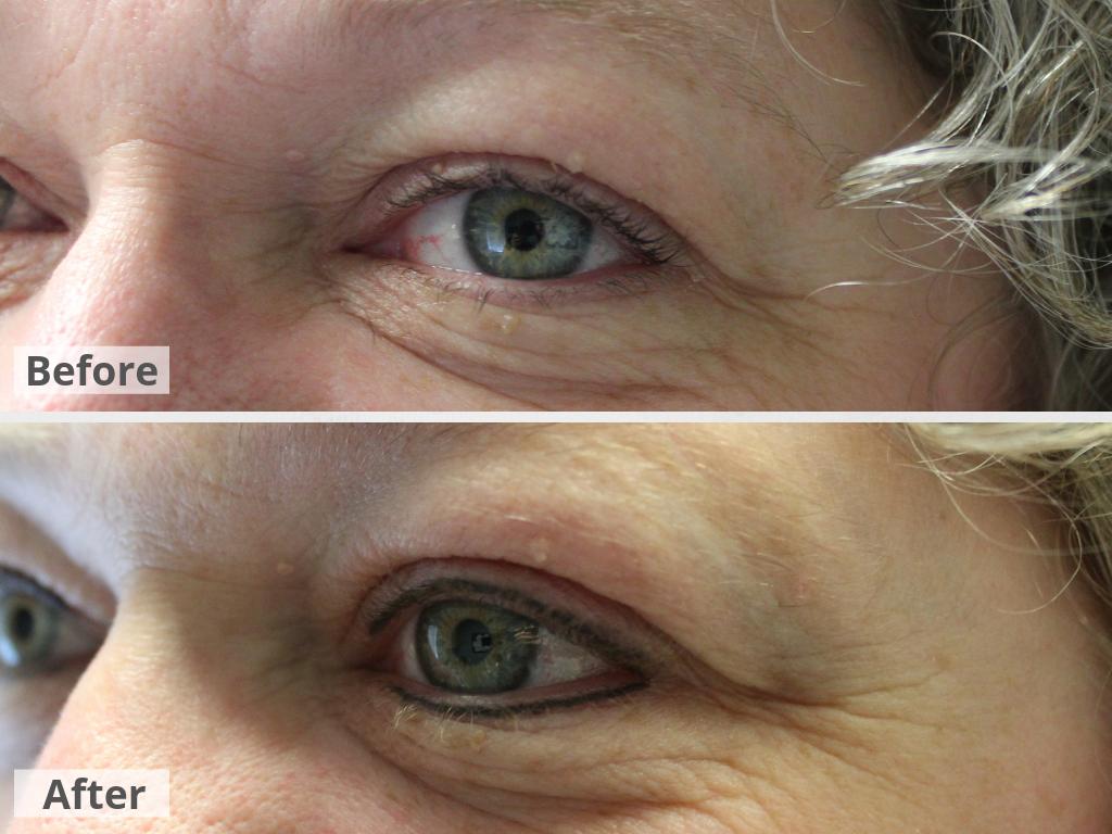 Eyeliner (Upper & Lower)