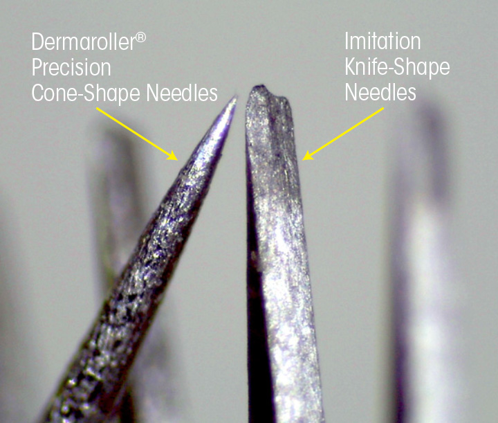 Micro-needling - Comparison