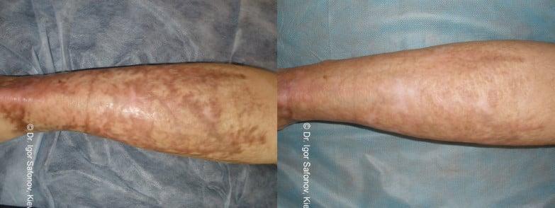 dermaroller - treatment of scars