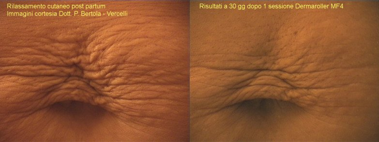 dermaroller - treatment of stretch marks