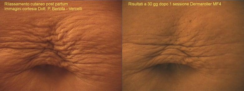 dermaroller - treatment of stretch marks